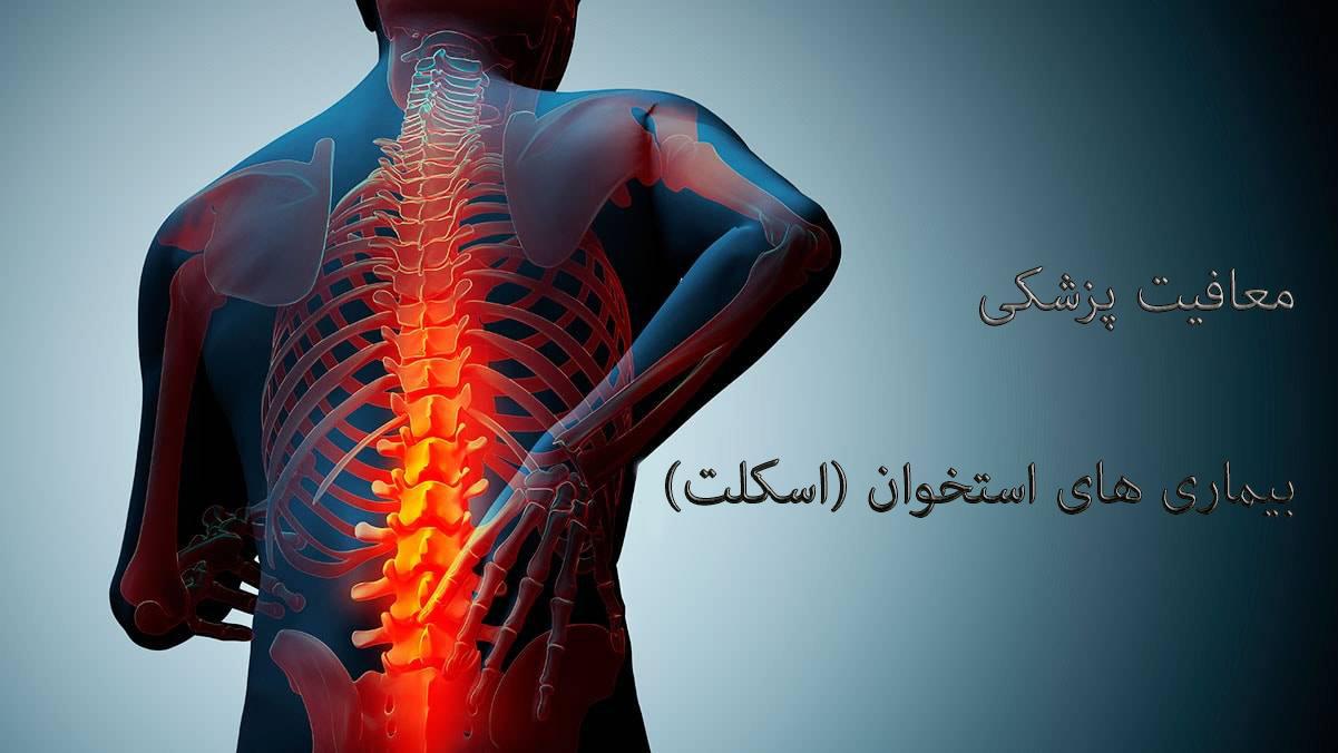 معافیت پزشکی, بیماری های استخوان (اسکلت), معافیت سربازی, مشاوره نظام وظیفه, خدمت سربازی