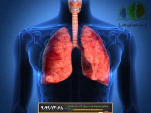معافیت سربازی, معافیت پزشکی, مشاوره نظام وظیفه, مشاوره معافیت, معافیت بیماری ریه, معافیت قفسه صدری, معافیت ریه و قفسه صدری