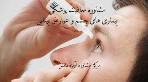 معافیت پزشکی, بیماری های چشم و عوارض بینایی, معافیت سربازی, مشاوره نظام وظیفه, مشاوره معافیت سربازی, مشاوره معافیت پزشکی
