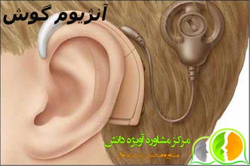 مشاوره معافیت پزشکی آنژیوم گوش,شرایط معافیت پزشکی آنژیوم گوش,قوانین معافیت پزشکی آنژیوم گوش,مراحل معافیت پزشکی آنژیوم گوش,مدارک معافیت پزشکی آنژیوم گوش