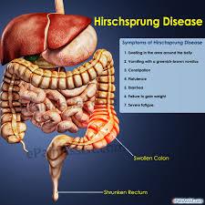 مراحل معافیت پزشکی هیرشپرونگ