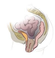 مراحل معافیت پزشکی پرولاپس,شرایط معافیت پزشکی پرولاپس,مشاوره معافیت پزشکی پرولاپس,قوانین معافیت پزشکی پرولاپس,مدارک معافیت پزشکی پرولاپس
