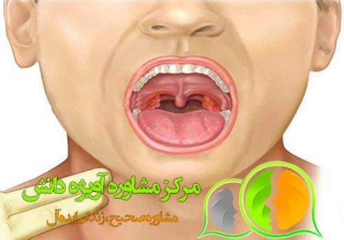 مشاوره معافیت پزشکی حفره و فضای دهان,شرایط معافیت پزشکی حفره و فضای دهان,قوانین معافیت پزشکی حفره و فضای دهان,مراحل معافیت پزشکی حفره و فضای دهان,مدارک معافیت پزشکی حفره و فضای دهان