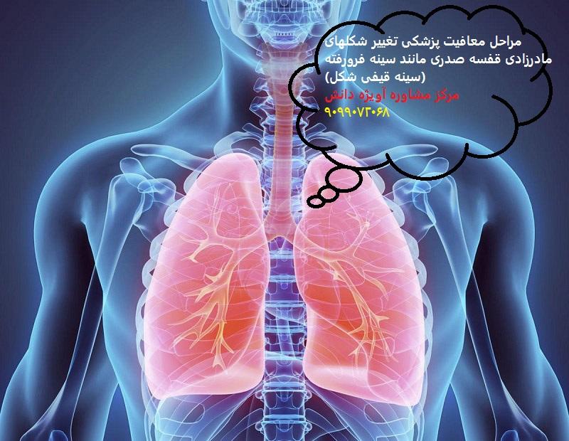مراحل معافیت پزشکی تغییر شکلهای مادرزادی قفسه صدری مانند سینه فرورفته (سینه قیفی شکل)4