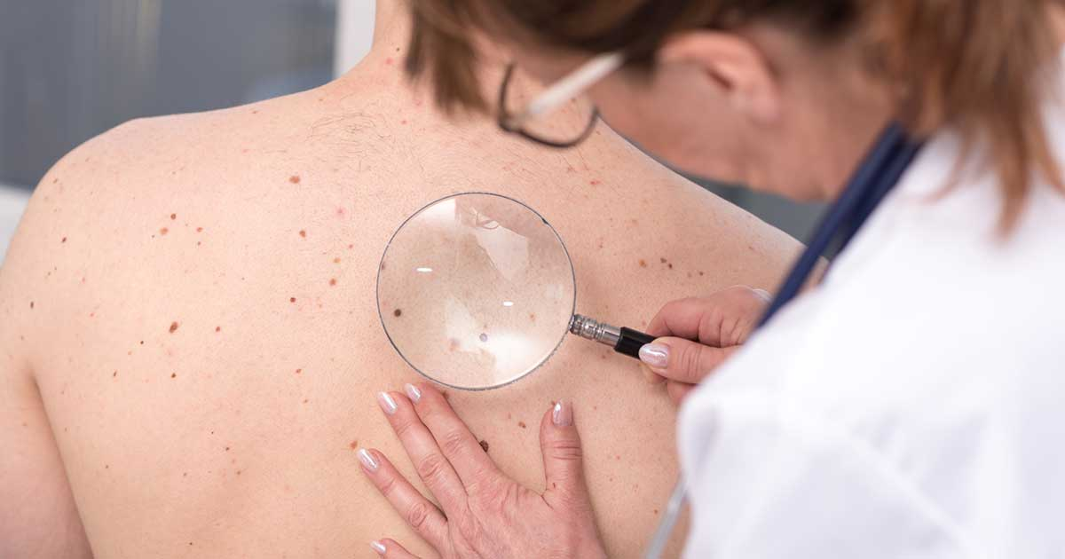 مشاوره معافیت پزشکی توبروز اسکلروزیس