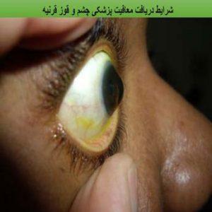 معافیت پزشکی چشم