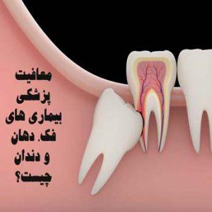 معافیت پزشکی بیماری های فک، دهان و دندان چه معایبی دارد؟