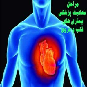 معافیت پزشکی بیماری های قلب و عروق چه شرایطی دارد؟
