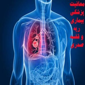 معافیت پزشکی بیماری ریه و قفسه صدریچه شرایطی دارد؟