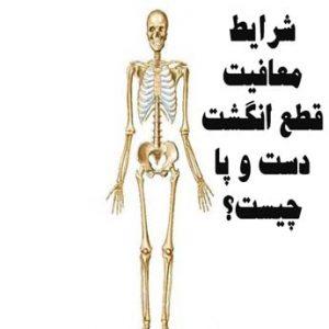 معافیت پزشکی بیماری های استخوان