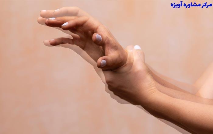 مراحل دریافت معافیت پزشکی لرزش دست